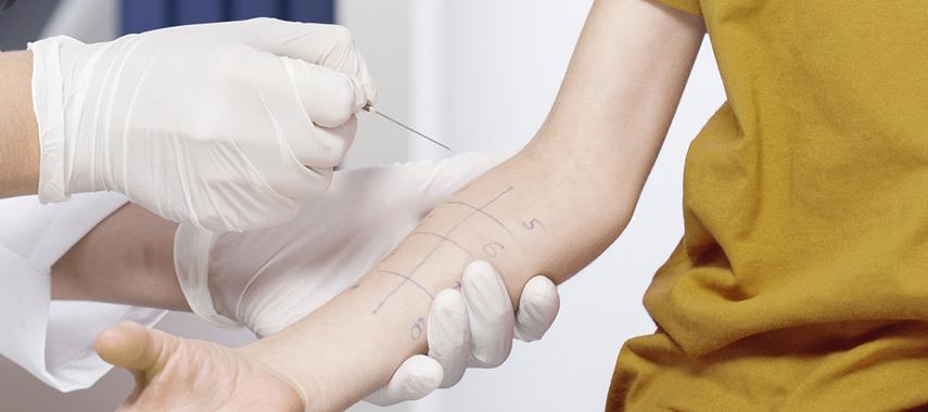 Child having done skin prick allergy test