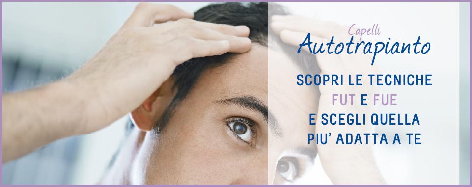 San carlo_Autotrapianto capelli_OUTLINE_promo